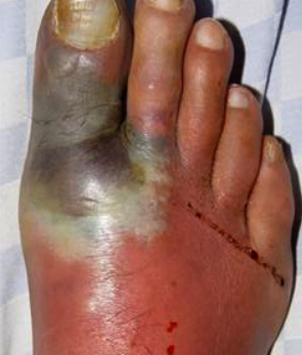 Diabetic Foot Ulcers Classification Systems Woundreference
