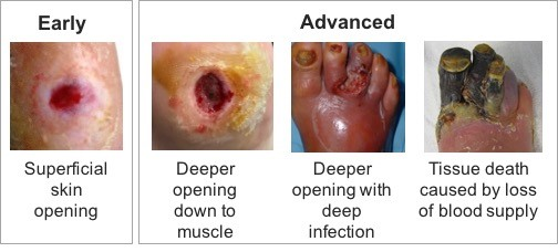 Patient Education Diabetic Foot Ulcer Woundreference