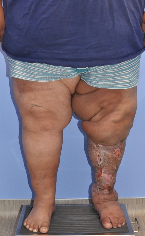 Lymphedema - Surgical Management - WoundReference