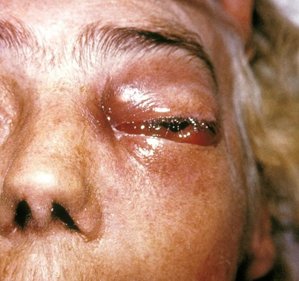 Periorbital fungal infection
