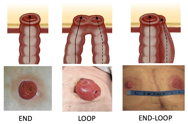 Surgical Ostomy for Fecal Diversion